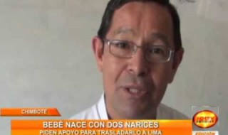 Chimbote: Nace bebe con dos narices